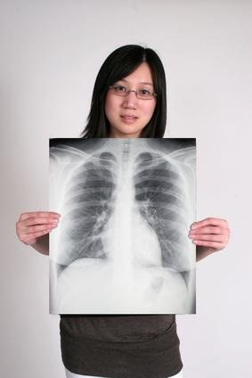 Fibrotique Lung cicatrices Causes