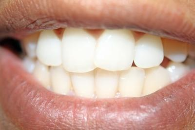 Comment traiter un mal de dents